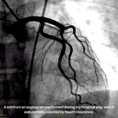 A still from the angiogram my insurance coverage partially covered.